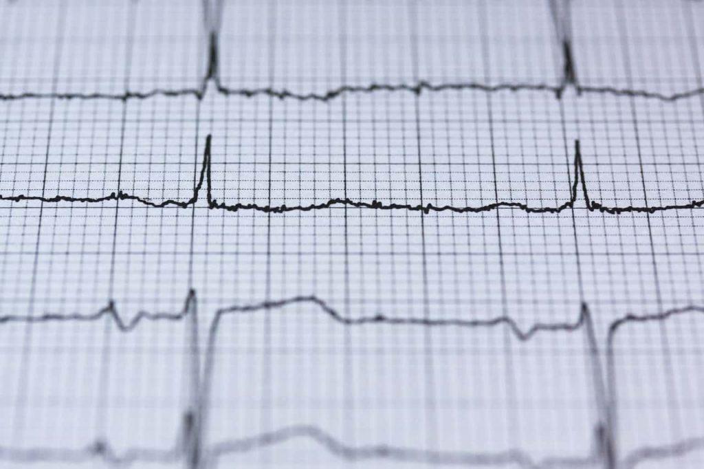 血圧-変化